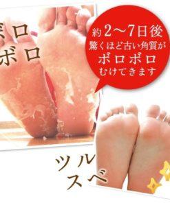 babyfoot7